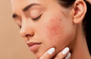 面膜多久敷一次对皮肤好?面膜应该怎么选?