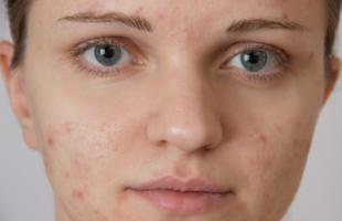 为什么脸上的皱纹越来越多?持续做好几件事,皮肤慢慢变好