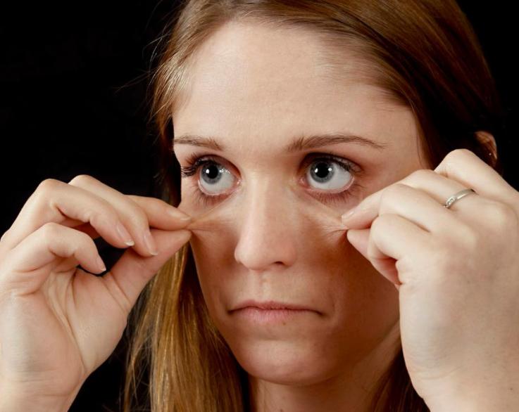 熬夜熬出现黑眼圈怎么办?如何消退黑眼圈?